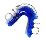 Lose Zahnspange